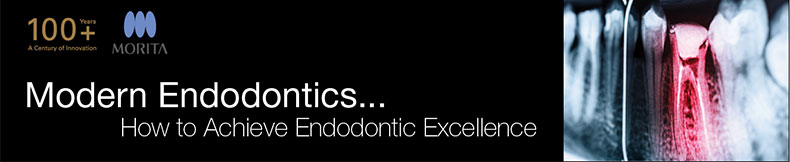 Modern Endodontics: How to Achieve Endodontic Excellence May to July 2017