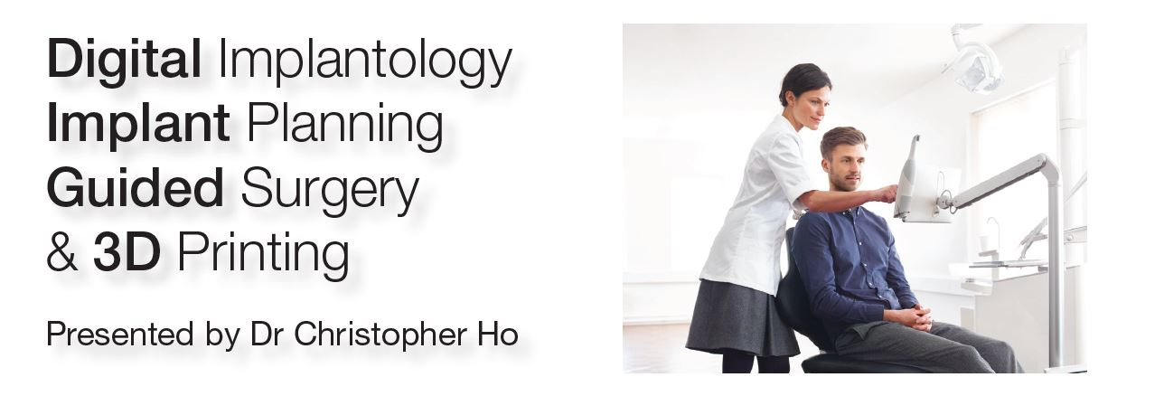 Digital Implantology, Implant Planning, Guided Surgery & 3D Printing