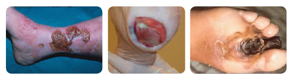 wound images for web