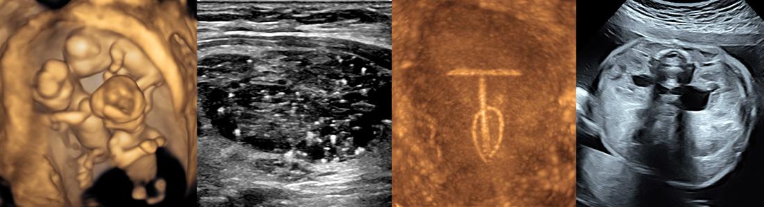 Ultrasound 2019