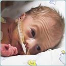 Alaska Perinatal Baby