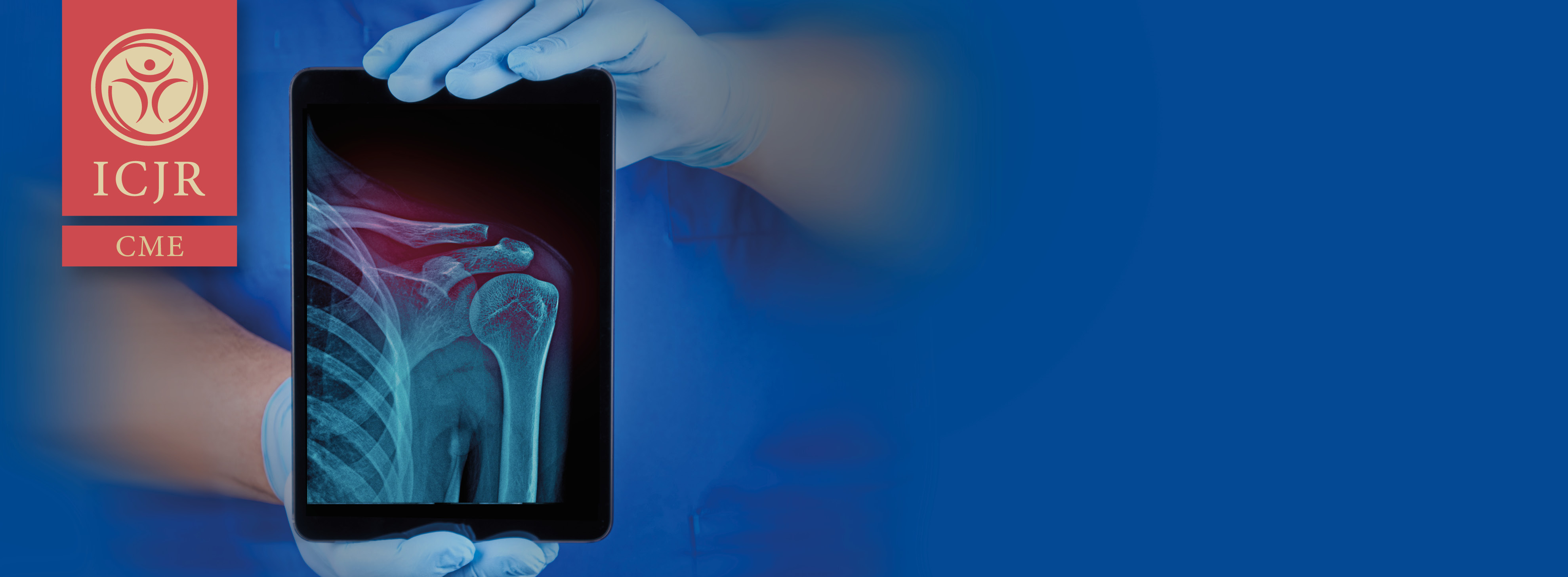 ICJR Insights: Advanced Concepts® in Shoulder Surgery - A CME Webinar Series
