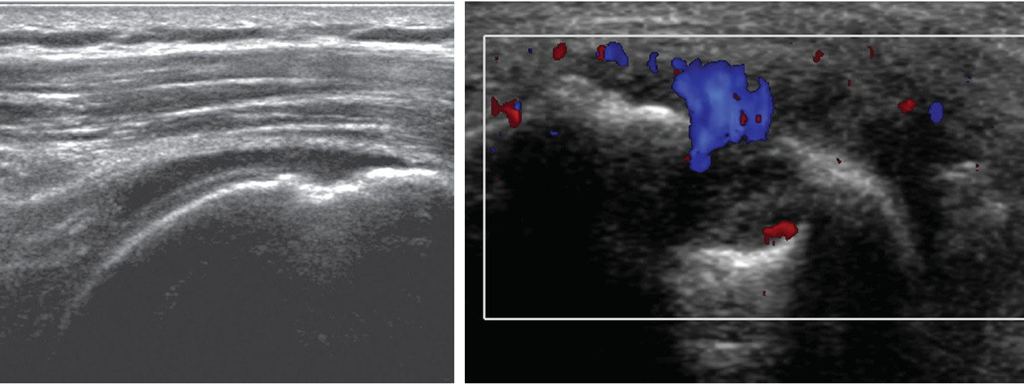 MUSCULOSKELETAL ULTRASOUND: A COMPREHENSIVE APPROACH