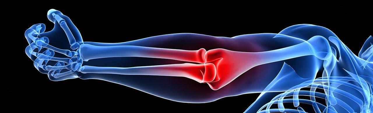 Musculoskeletal Ultrasound & Cadaver Workshop for Rheumatologists