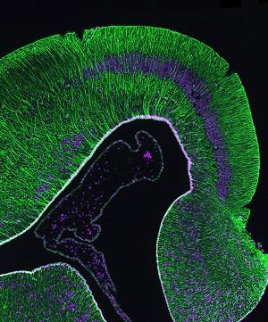 Reptilian Radial Glia