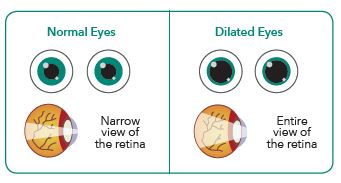dilated eye exam diagram