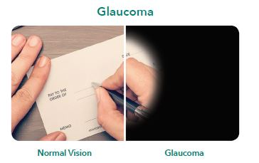 Glaucoma Risk Factor Picture
