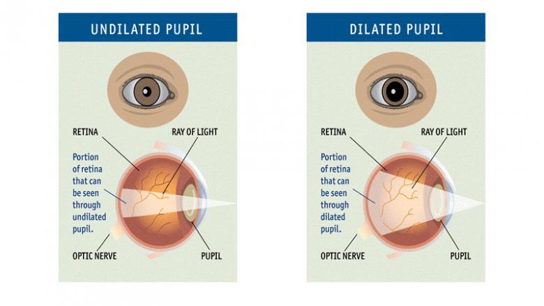 dilated vs. undilated