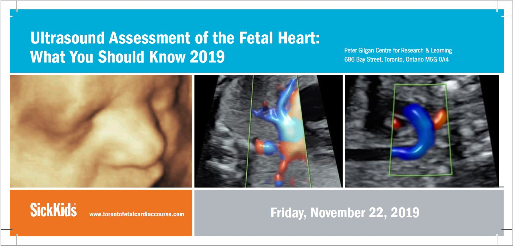 Ultrasound Assessment of the Fetal Heart: What You Should Know - Toronto 2019