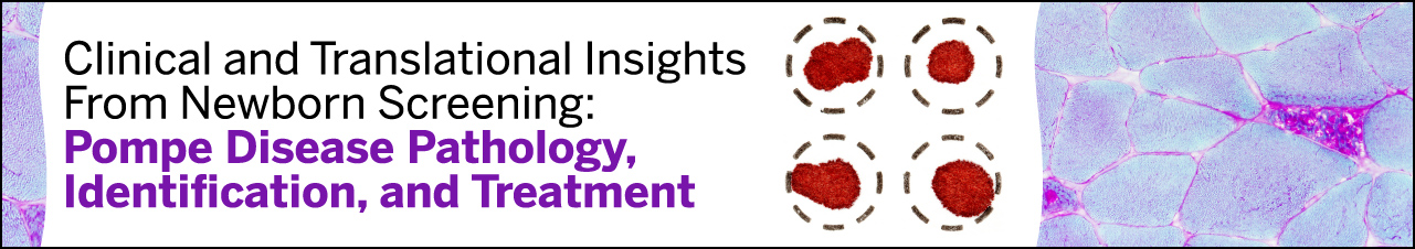 Clinical and Translational Insights From Newborn Screening: Pompe Disease Pathology, Identification, and Treatment